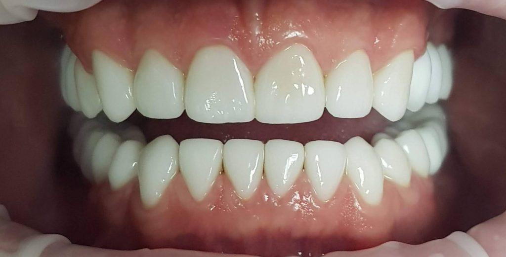 зубные коронки, работа пациента